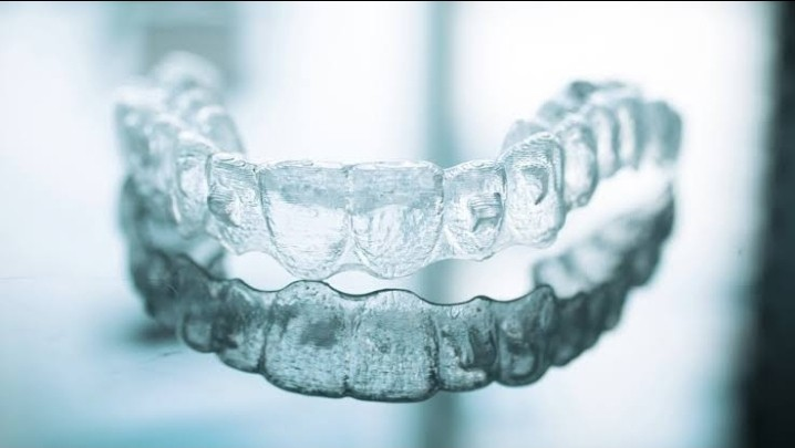 The Details of the Timeline of Invisalign Treatment